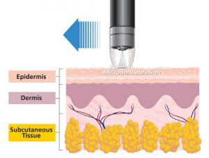 Facial Treatments - Microdermabrasion physiology